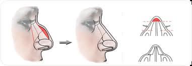 Schema ablation de la bosse nasale