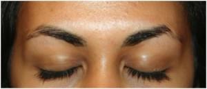 Chute de poils queue des sourcils