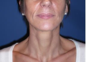 Résultat lifting cervico-facial