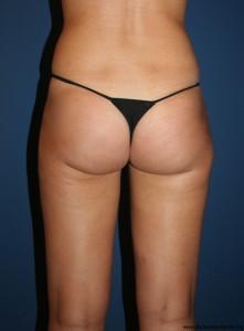 Résultat après une liposuccion de la culotte de cheval