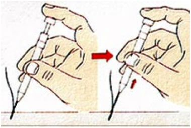 Aspect implanteur de choi - Dr Bouhanna