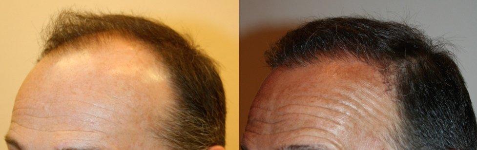 Avant après implant capillaire