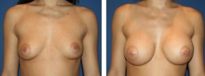 Résultat avant après prothèses mammaires silicone