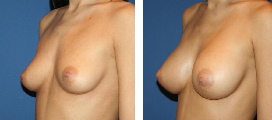 Implant mammaire en silicone de chirurgie