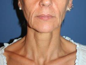 Photo femme - relachement de la peau du visage