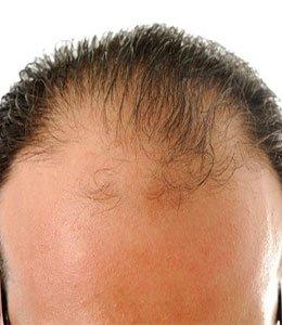 perte de cheveux homme