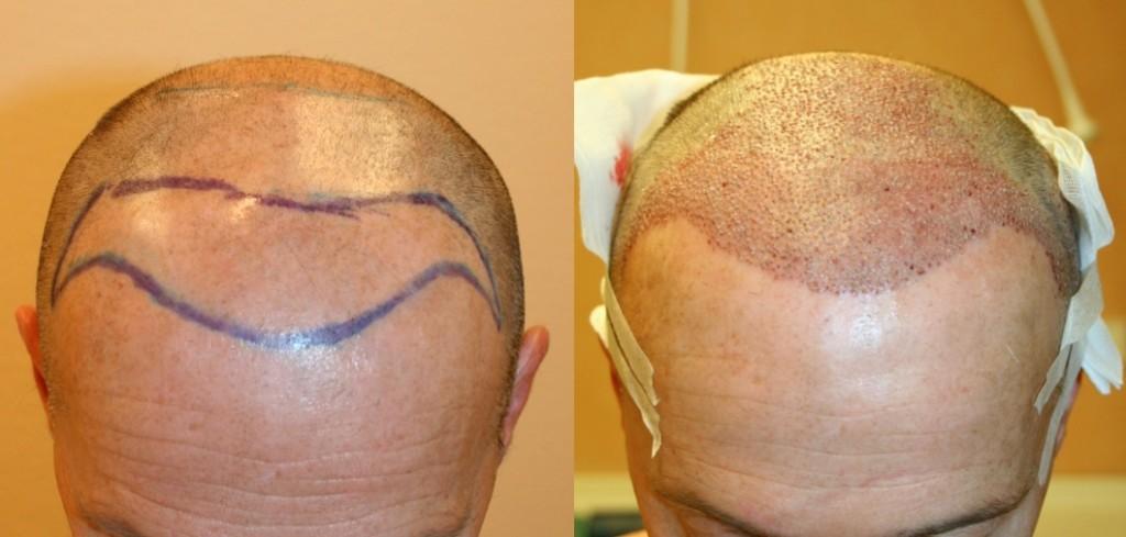 FUE avant après opération