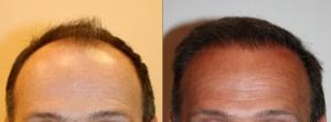 Photo avant après une greffe du cheveux