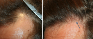 Greffe de cheveux - méthode FUE