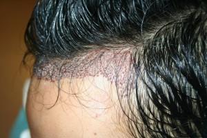 Méthode FUE - implant capillaire