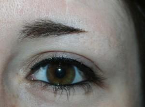 Perte des 2/3 des sourcils