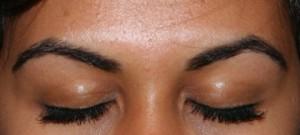 Reconstruction des sourcils par greffe
