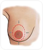 réduction du sein en retirant l'excès de peau autour de l'aréole