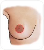 réduction mammaire péri-aréolaire