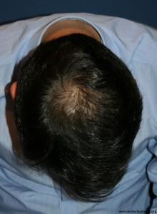 Résultat après 6 mois de minoxidil