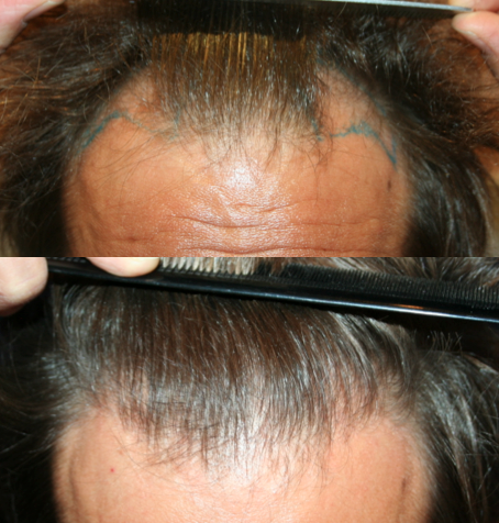 Résultat avant et après une correction des golfes