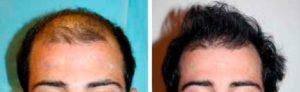 Résultat avant et après 2 séances d'implantations capillaires (2 000 UFs et 1 800 UFs) par la technique de la bandelette.