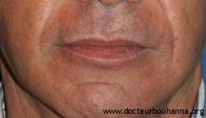 Résultat avant et après injection de graisse au niveau du visage
