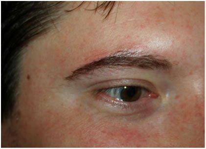 Résultat homme après implant du sourcils