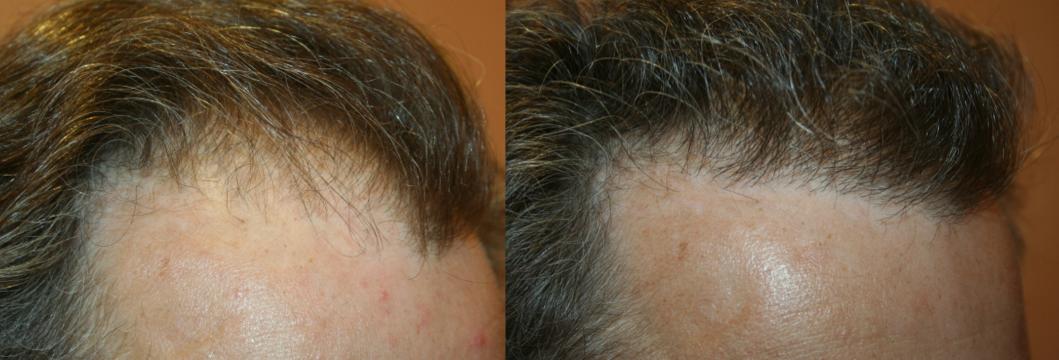 résultat implants cheveux avant après Paris