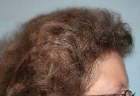 Résultat naturel après une séance de greffe de cheveux