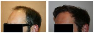 Résultat photos avant après greffe cheveux paris