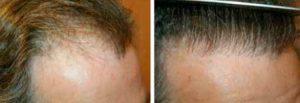Résultat avant et après 1 séance d'implantations capillaires (1 200 UFs) par la technique FUE pour comblement des golfes.