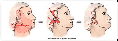 Technique de lifting cervico facial