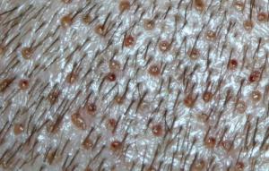Zone donneuse après prélèvement des folliculaires - FUE