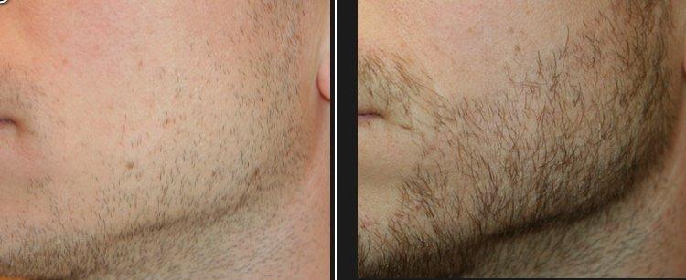 Résultat avant et après une greffe de barbe
