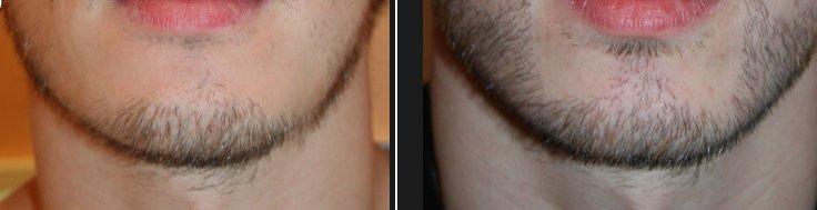 Greffe de barbe - Résultat