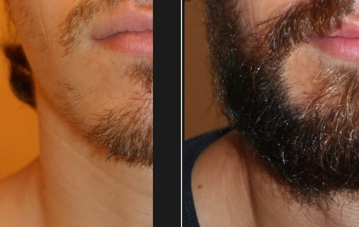 Résultat implant barbe - photo